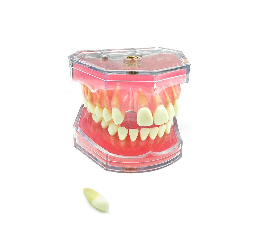 نموذج دراسة طبيب الأسنان ، النموذج القياسي ، الأسنان القابلة للإزالة ، اللثة الناعمة ، للبالغين