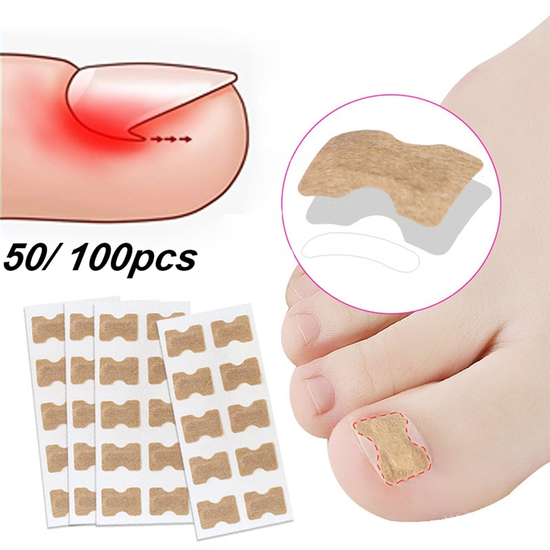 Ingrown Toenail Corrector Sticker Paronychia Treatment Fixer Recover Corrector Pedicure Foot Toe Nail Care Tool Elastic Patch недорого
