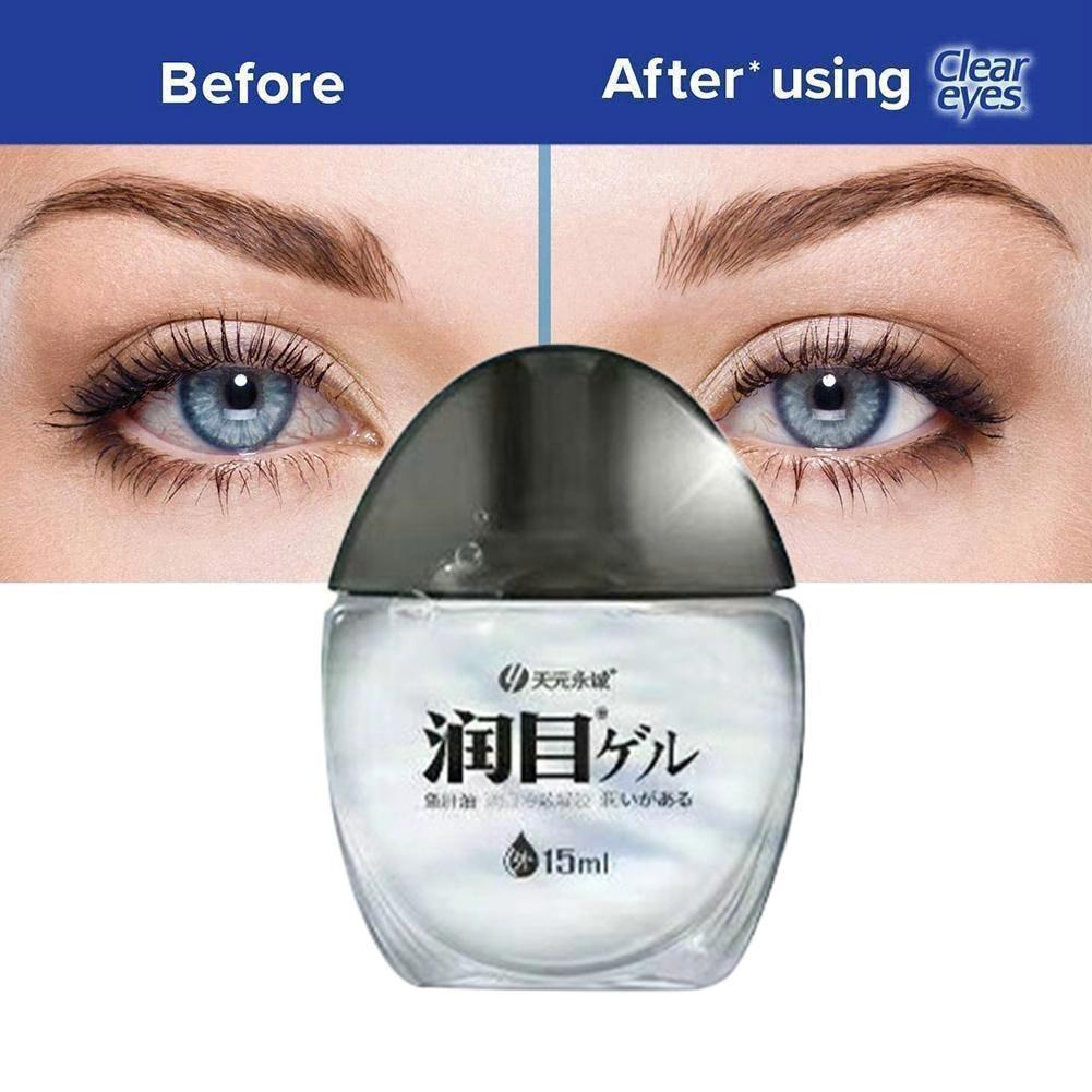 Cod Liver Oil Eye Drops Relieve Dry Eyes And Swelling Eye Drops Effect The Have And Relieving Fatigue Visual Of Blur C4X8