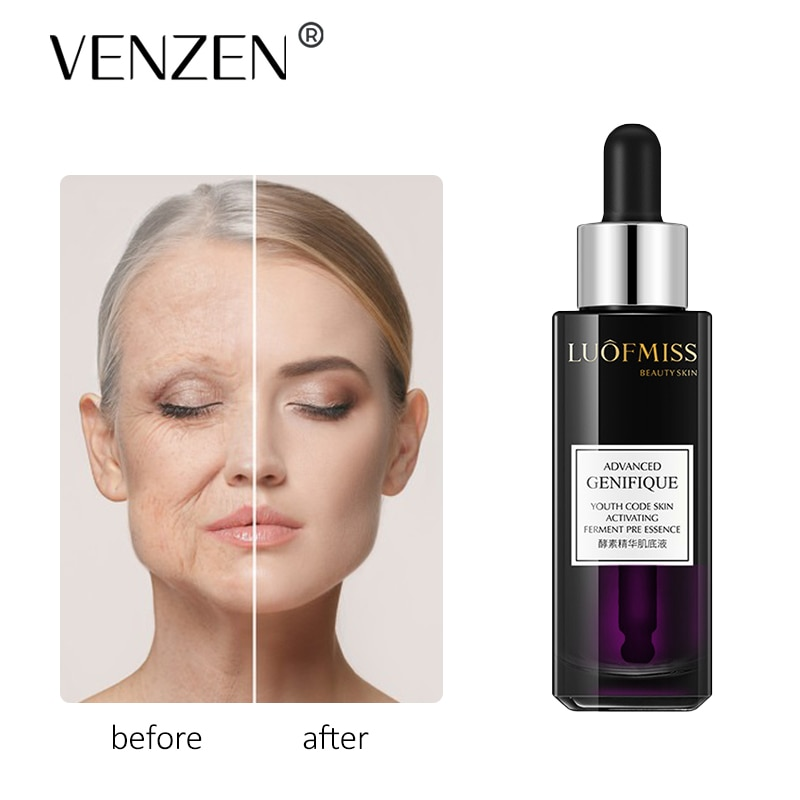 LOUFMISS Yeast Face Serum Oil Control Anti-Aging Anti-Wrinkle Firming Shrink Pores Nourishing Moisturizing Deep Skin Care