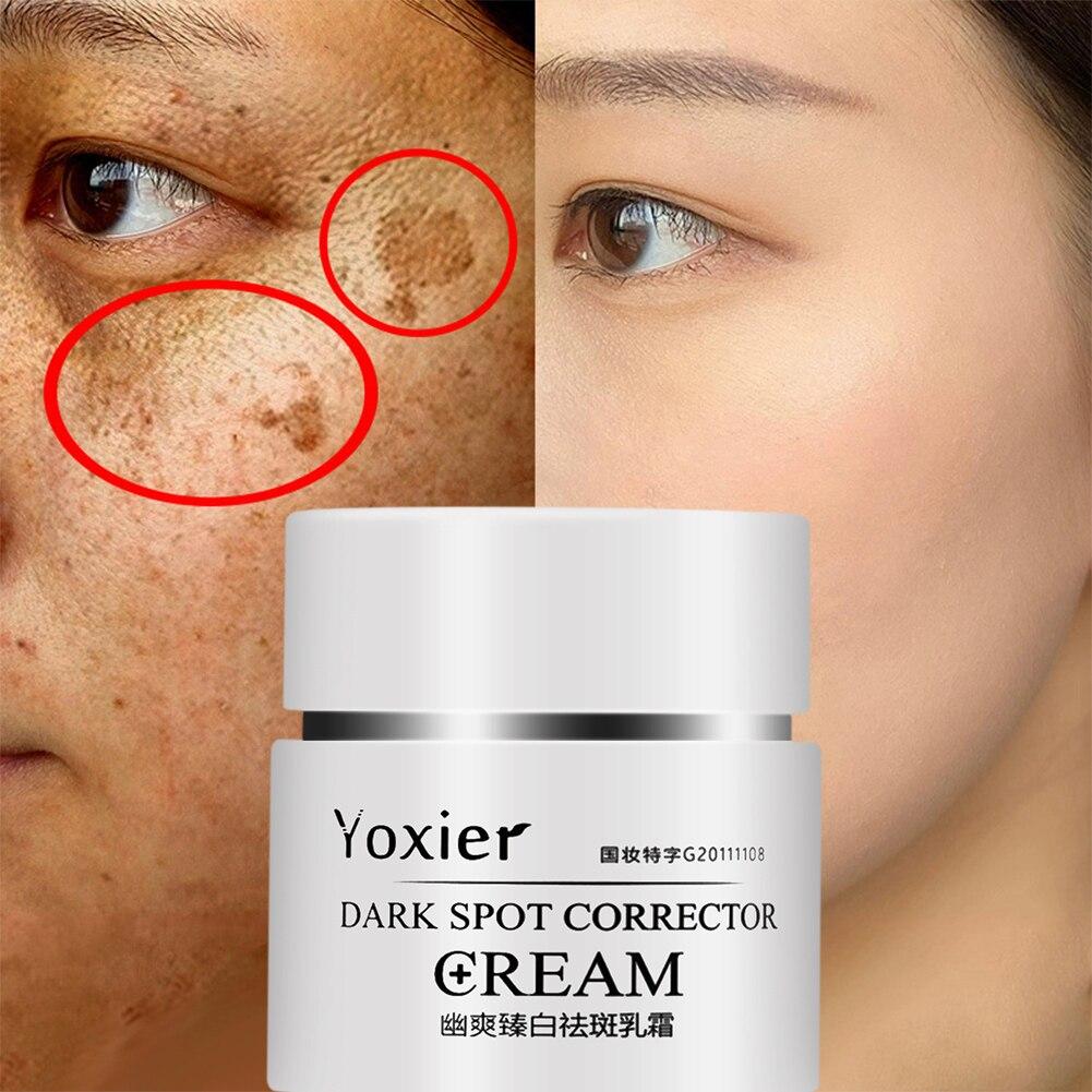 2021 Face Cream Dark Spot Corrector Anti-Aging Whitening Moisturizing Remove Sunburn Dark Spots and Acne Pigmentation 30g drops недорого