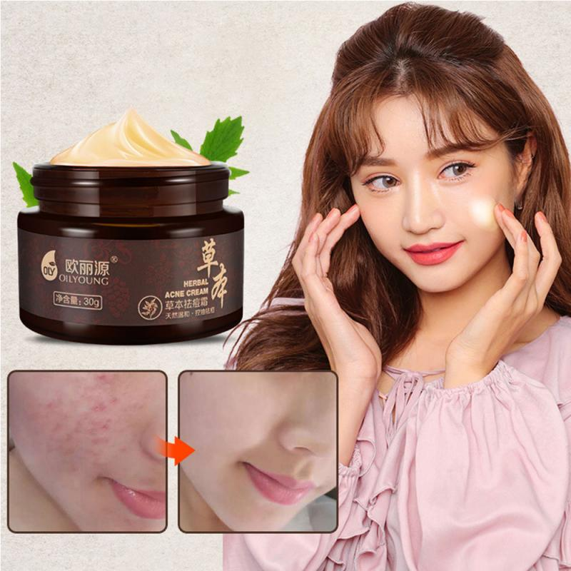 Natural Herbal Blackhead Remover Cream Oil Control  Moisturizing Face Cream Acne Treatment Black Deep Cleansing Skin Care недорого
