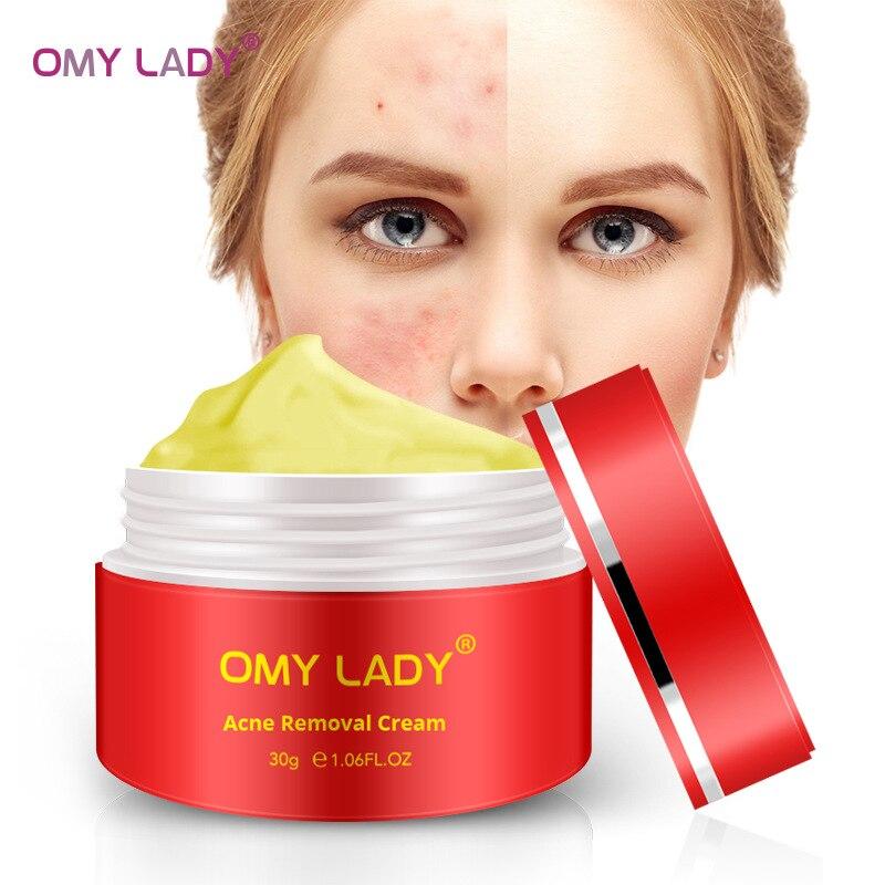 OMY LADY Acne Treatment Cream Efficient Spot Removing Weaken Scar Repairing Nourishing Acne Skin Face Care