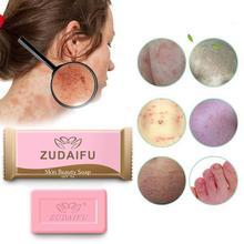 1pcs Sulfur Soap Trial Pack Skin Antibacterial Treatment Acne Psoriasis Seborrhea Eczema Anti Fungus