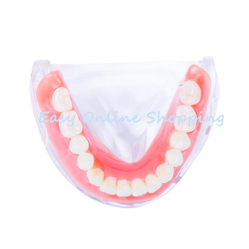 LOSUNCARE 1 PC Dental sobredentadura dientes modelo Interior extraíble Mandibular con 4 implante para diente estudio pedagógico