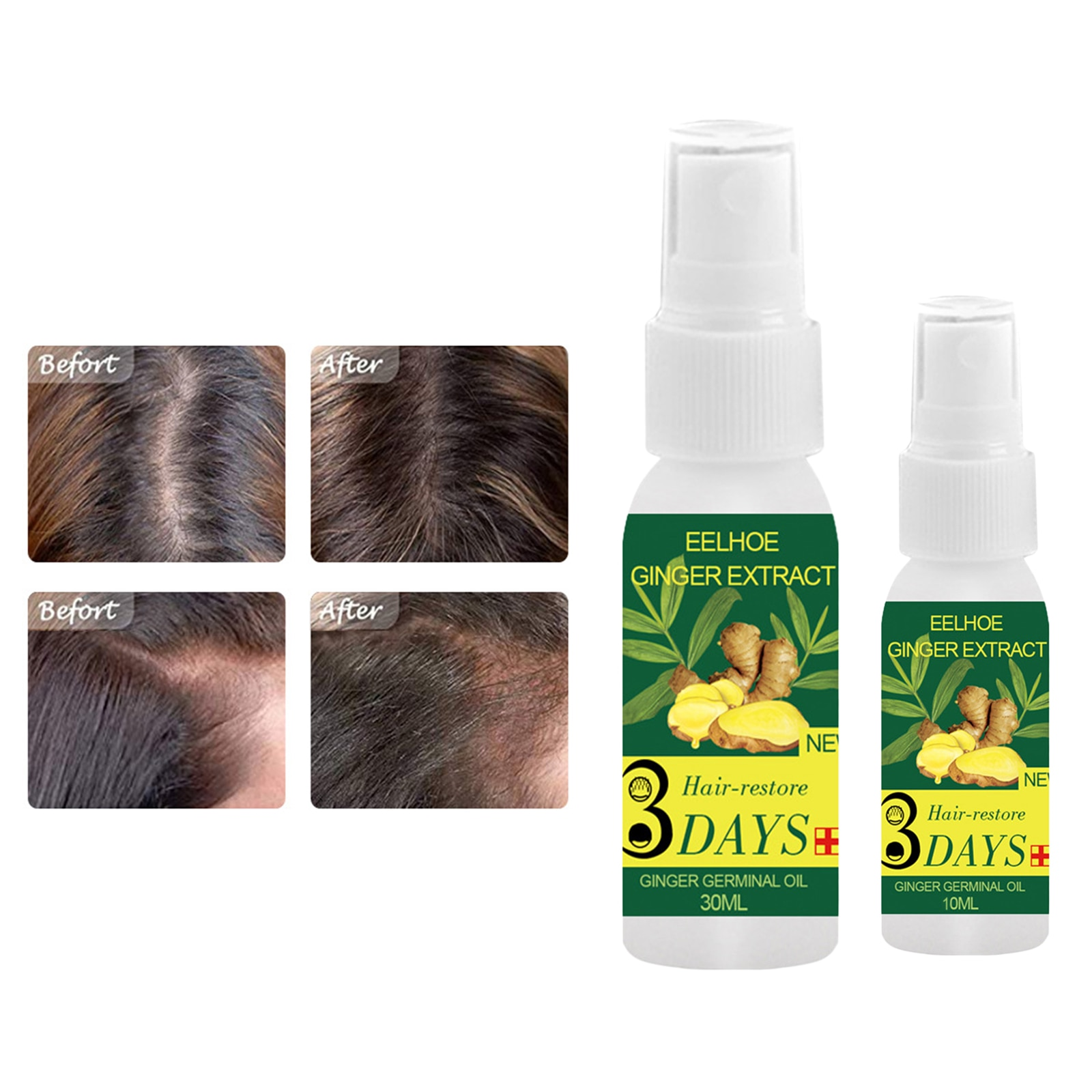 100% Pure Ginger Extract Hair Growth Massage Essential Oil Serum Natural