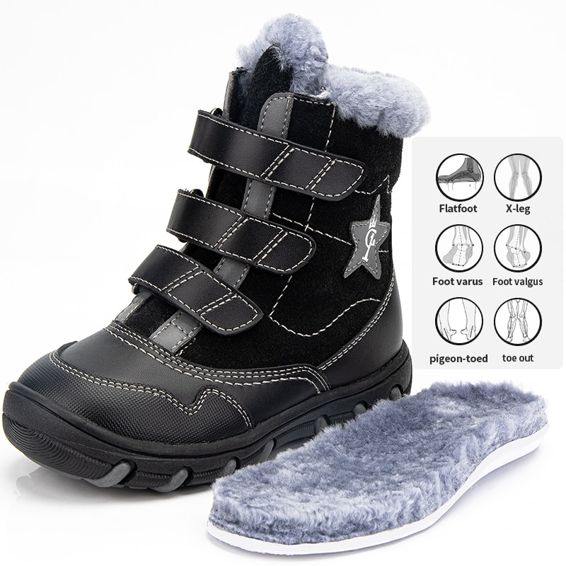 Princeprd New Winter Children's Orthopedic Supportive Shoes for Girls Boys 100% Natural Fur Star Pattern Orhopedic Boots kids