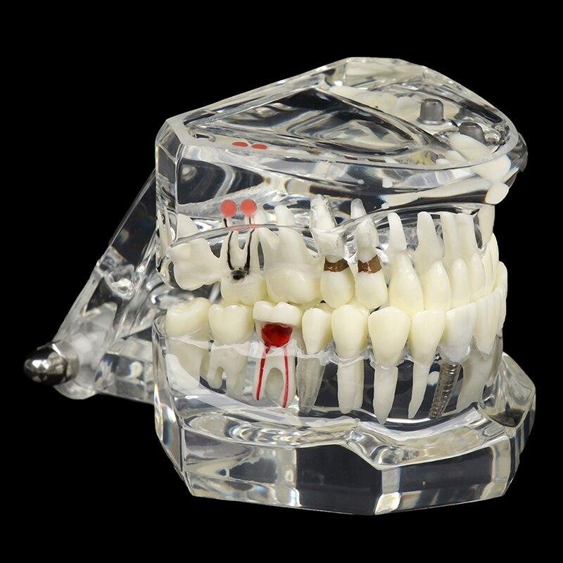 Nuovo modello dentale denti impianto restauro ponte istruzione studio scienza medica malattia dentista prodotti per odontoiatria