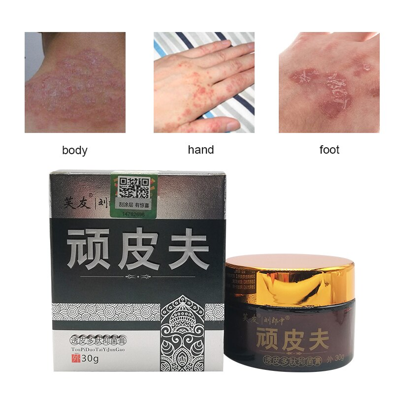 Chinese Medicine Eczema Cream No Side Effects Ointment For Psoriasis Anti-Itch Medical Plaste Dermat