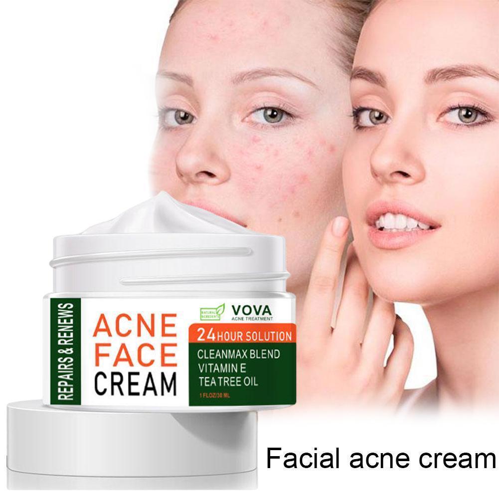 Acne Removal Cream Acne Treatment Fade Acne Spots Oil Control Shrink Pores Whitening Moisturizing Acne Cream Skin Care Effective недорого