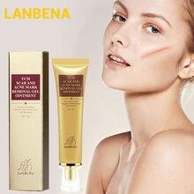 LANBENA repara cicatrices, remueve cicatrices de acné, estrías de Gel para el acné, cicatrices de espinillas, manchas rojas, crema hidratante antiinflamatoria