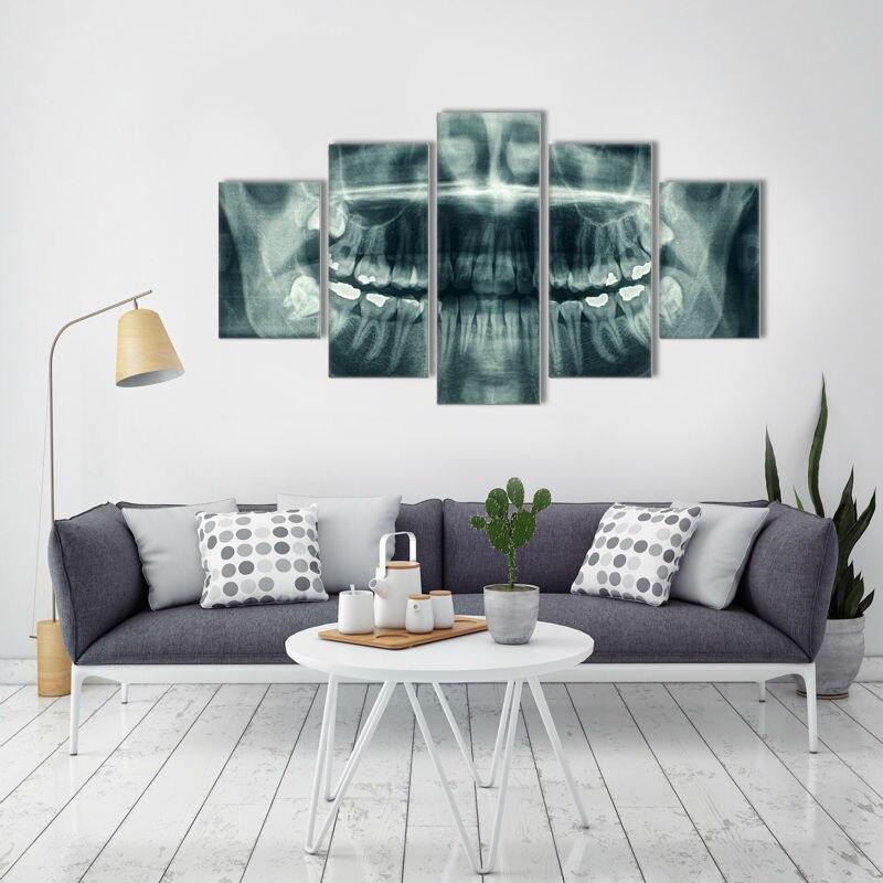 Póster de lienzo de arte de pared 5 piezas lienzo pintura arte dental x-ray imagen Poster impresión pintura habitación decoración de pared arte