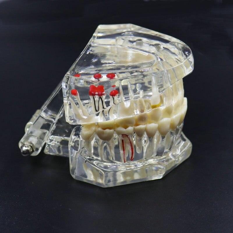 Модель зубного имплантата, реставрация зубов, модель активной стоматологической лаборатории Materila