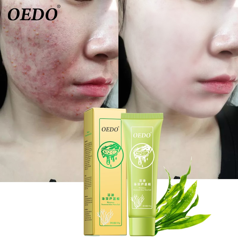 OEDO Seaweed Aloe Acne Removal Gel Remove Acne Scar Acne Treatment Moisturizing Whitening Cream Shrink Pore Smooth Skin Care
