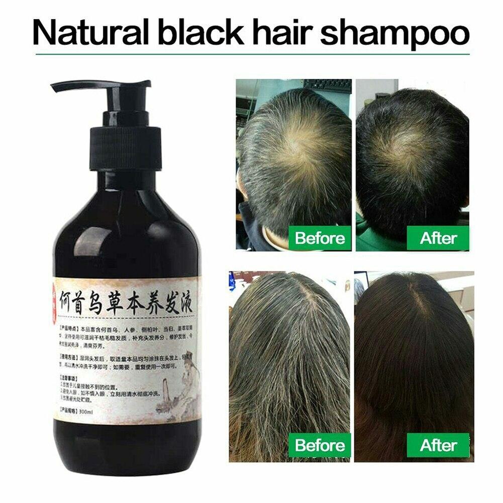 Champú gris de 300ml para dar Color al cabello, champú anticaspa, champú nutritivo para reparar el cabello negro, cabello dañado seco