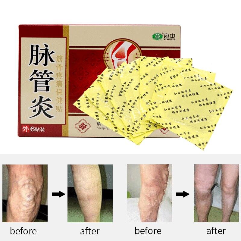 24 pces medicina tradicional chinesa herbal remendos cura aranha veias varicosas tratamento de gesso varicosas veias vasculite natural