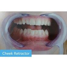 10 pièces C type ouvre-bouche dent lisseur épandeur lèvre Oral propre ouvreur dentaire joue lèvre écarteur bouche ouvreur modèle
