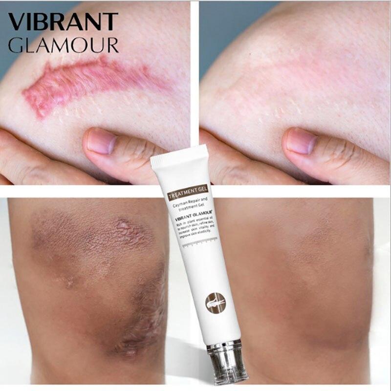 Cayman Acne Scar Stretch Marks Removal Skin Repair Face Cream Moisturizing Acne Spots Acne Treatment Blackhead Whitening Cream