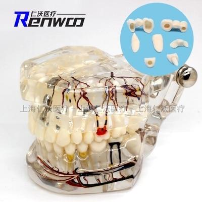 Plantio de patologia transparente reparo do nervo do dente Dental modelo teeth Ensino demonstração modelo