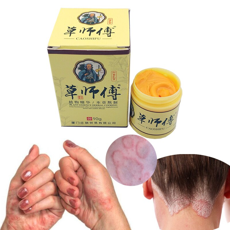 Profesprofessional Cure Psoriasis Ointment Medicine Chinese herbal medicine composition No side effects