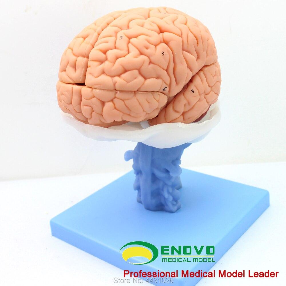 ENOVO The model of cerebellar cerebellar model of cerebellar cerebellum in the brain of medical human. brain enovo medical proteinuria model human kidney model renal corpuscle anatomy of urologic hypertension