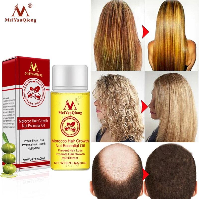 MeiYanQiong rápido potente crecimiento del cabello esencia productos para la pérdida de cabello tratamiento de aceite esencial Prevención de la pérdida de cabello productos para el cuidado del cabello