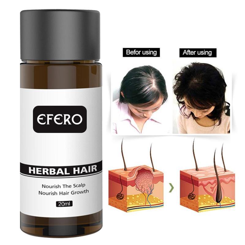 Productos para el cabello profesionales crece más grueso Efferent potente Serum aceite esencial para el crecimiento del cabello para evitar la pérdida de cabello