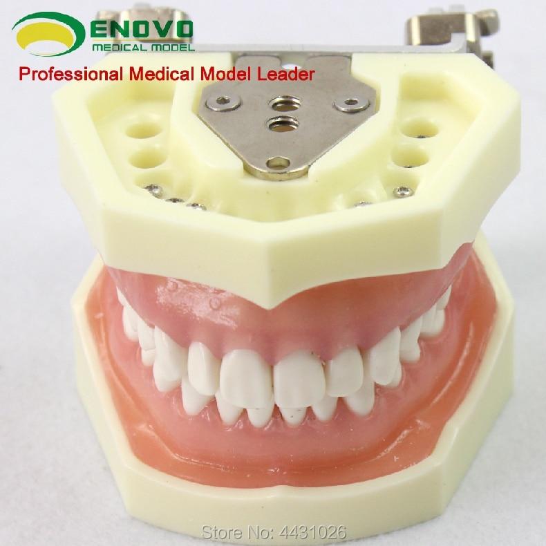 ENOVO A model of periodontal disease in oral periodontal disease