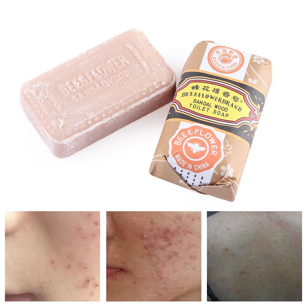 Jabón de sándalo blanqueador, barra de acné, espinillas faciales, limpiador eliminador de espinillas, antibacteriano para baño, ducha, cuidado corporal