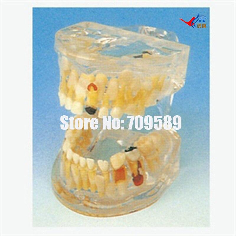 Modelo de patología de dientes de leche transparentes, modelo de cuidado Dental