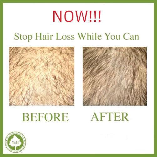 ¡El mejor champú Natural antipérdida de cabello! Deja de adelgazamiento. Tratamiento integral