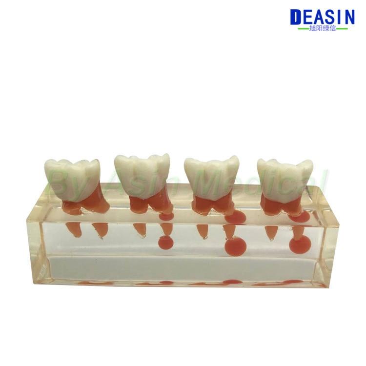 Nuevo modelo de enseñanza Oral Dental, modelo de tratamiento endodóntico que demuestra el proceso de los dientes caducifolios