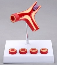 أمراض الأوعية نموذج نموذج الإنسان فرع تصلب الشرايين تصلب الشرايين النموذجي