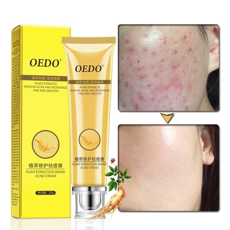 Reparação Acne Creme Ginseng Extração OEDO Scutellariae Extrato Rosto Cuidados Tratamento Ance Cuidados Com A Pele Creme de Clareamento Facial TSLM2