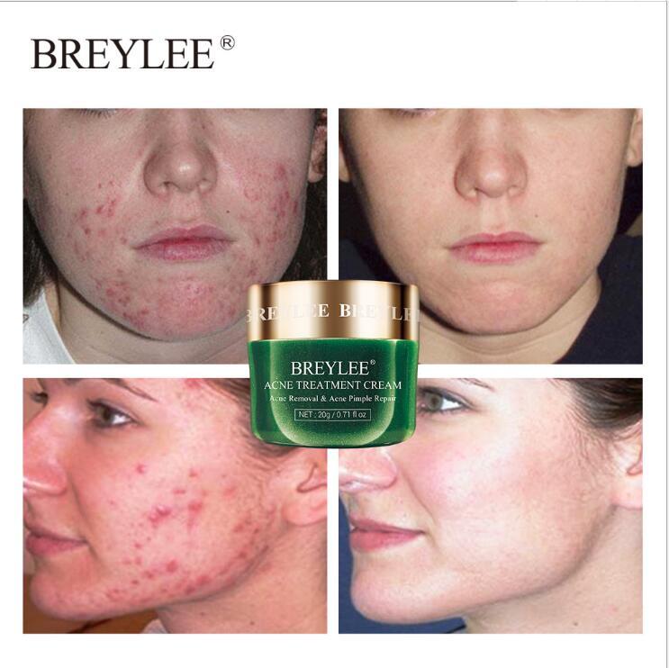 BREYLEE el tratamiento del acné crema Anti acné Crema de Cara de grano de eliminación de manchas de aceite de Control reducir los poros hidratante cuidado de la piel suero