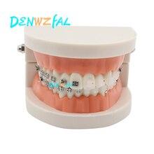 new Orthodontics Model for Dentist Dental 1/2 Standard Dentition with half Metal Brackets half ceramic bracket Teeth Model