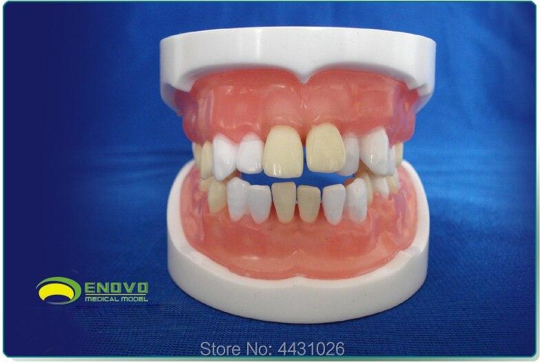 ENOVO Medical qualification examination tooth extraction model oral cavity dental model oral cavity division tooth extraction