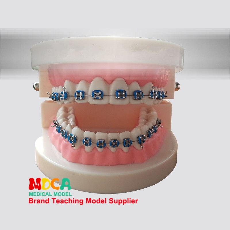 Модели зубов, стоматологические материалы, средства, ортодонтия, обучение стоматологии MYC003