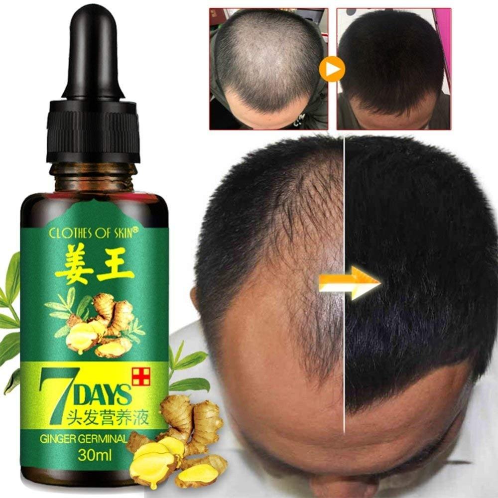 Эфирные масла для роста волос, масло имбиря для быстрого роста, против выпадения волос, лечение алопеции, сыворотка для роста густых волос
