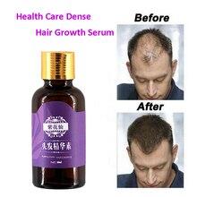 La croissance rapide de cheveux de 20ml élèvent plus rapidement la repousse de cheveux pour les hommes femmes produits naturels purs de perte de cheveux traitement pilatoire Anti-perte de cheveux