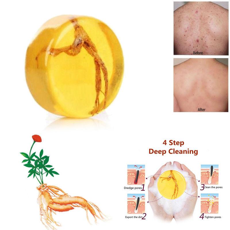 1 unidad de jabón revitalizante de Ginseng Psoriasis Eczema Anti hongos hidratante blanqueamiento de baño jabón hecho a mano