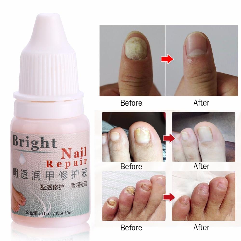 Gel da remoção do fungo do dedo do pé do óleo da essência do tratamento fúngico do prego de 10ml anti infecção do fungo paronychia onychomycosis