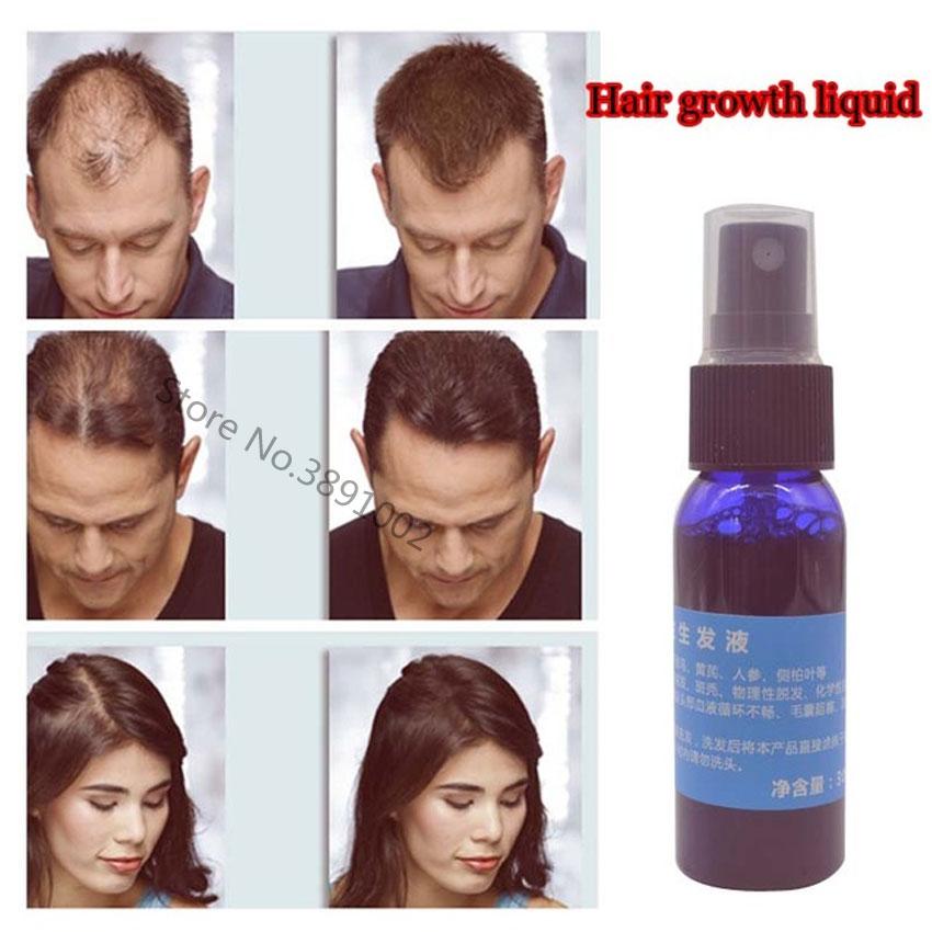 Nueva Marca Okenys 2018 Yuda Pilatory producto para crecimiento del pelo líquido rápido crecimiento de cabello tratamiento de pérdida de cabello 30 ml/botella Anti pelo gris