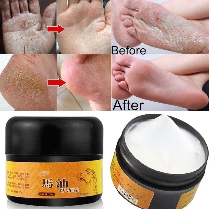 Aceite de caballo mano anticongelante crema tratamiento piel seca talón agrietado reparación Peeling Anti rozaduras pomada para tratamiento