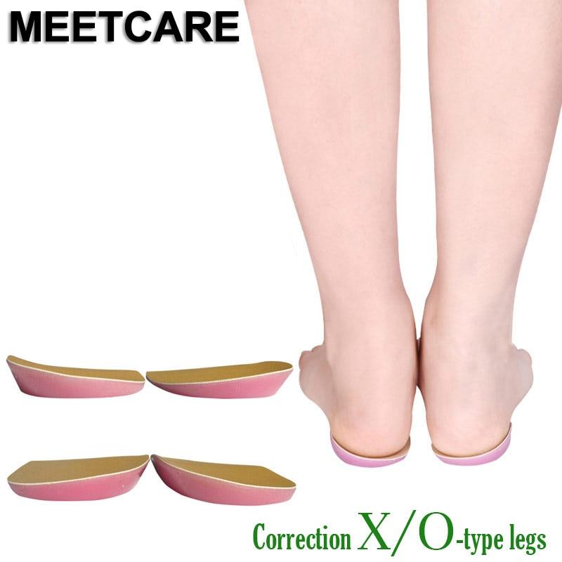 1 par ototic x & o forma pernas massagem ortopédica varus pé valgus pés arco apoio protetor sapato palmilha correção unisex