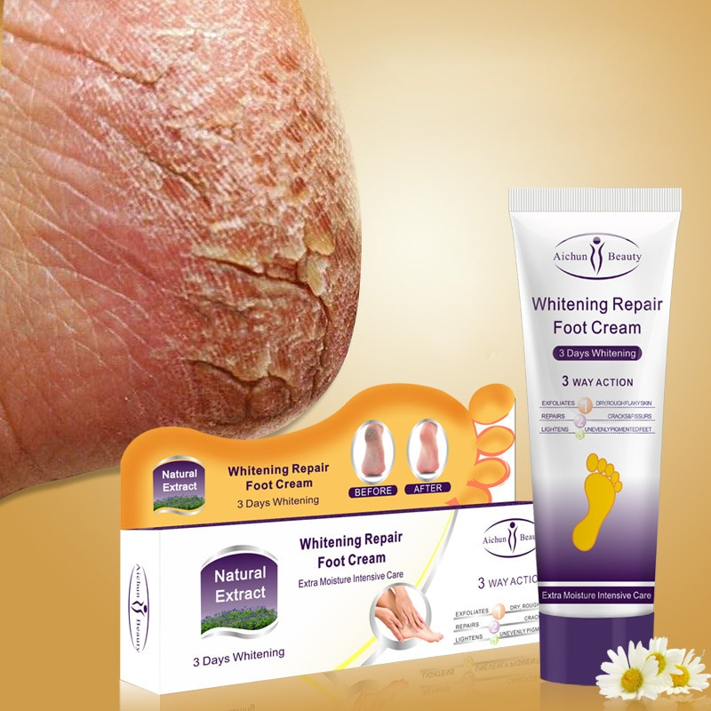 Aichun Riss Ferse Creme Reparatur Anti Riss Bleaching Creme Fuß Peeling Rissige Hände Füße Trockene Haut Feuchtigkeits Fußpflege