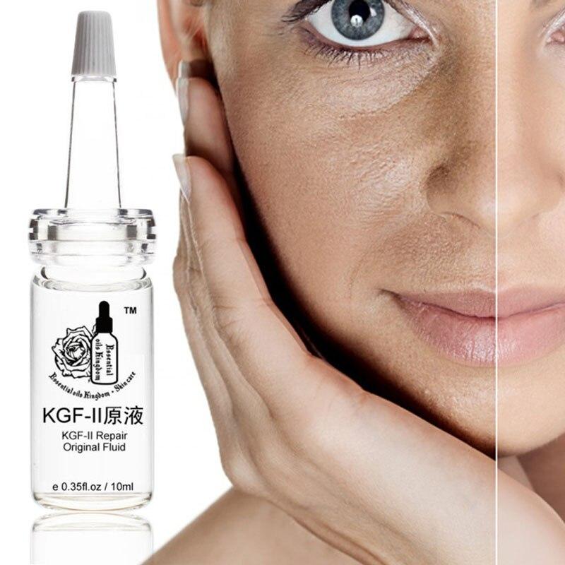 Kgf-II Repair Original Fluid Skin Capillarie Acne Scar Essence Relieves Whitening Moisturizing Anti-sensitive 10ml*pcs