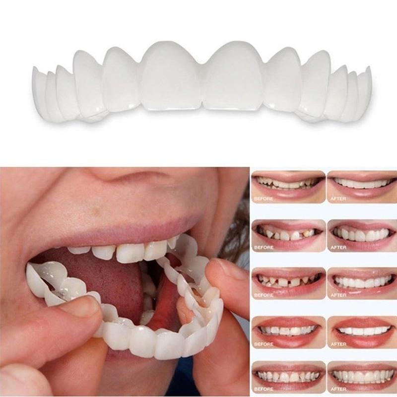 Виниры для зубов, отбеливающие оснастки на улыбке, косметические протезы для зубов, мгновенные идеальные зубы для улыбки, накладные зубные покрытия, средства гигиены полости рта