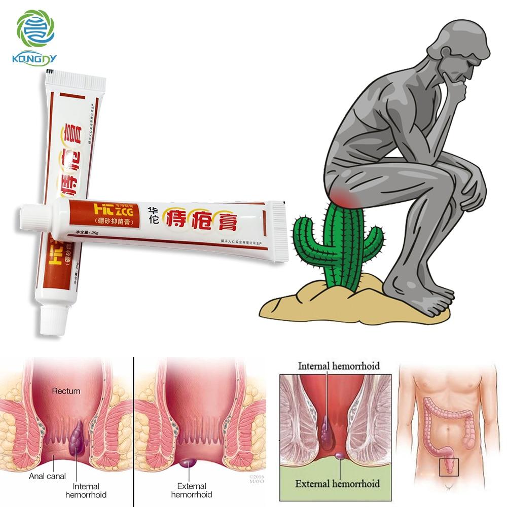 KONGDY 1 шт. растительный травяной крем от геморроя, китайский пластырь для внутренней геморроя, групы внешней анальной мази, облегчающей Анальная боль