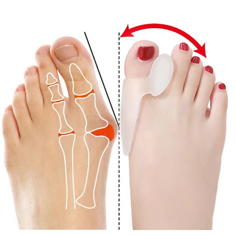 1 par hallux valgus broadhurst almofada remedical osso polegar sílica gel uso diário conjuntos de cuidados com os pés silicone toe bunion protector